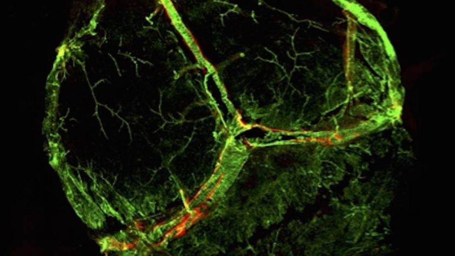 Scientists Have Discovered The Existence Of Lymphatic Vessels In The