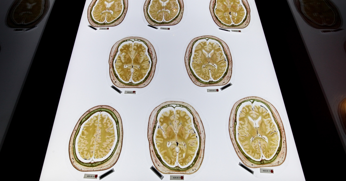 Plastinated slices of the human brain, marked with red dots to indicate that only institutions may buy them, lie on display for sale for up to EUR 625 each at the shop of the Plastinarium on May 28, 2010 in Guben, Germany.</p>