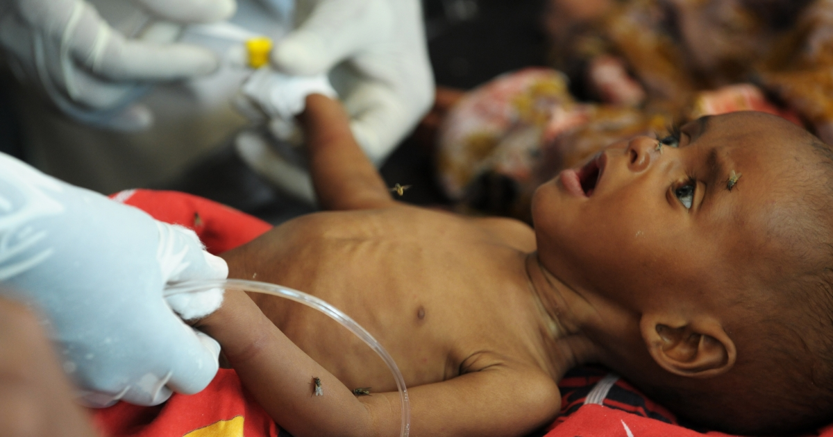 A baby is tended to in an effort to stabilize him after he was admitted to a local hospital suffering from acute malnutrition on August 16, 2011.</p>