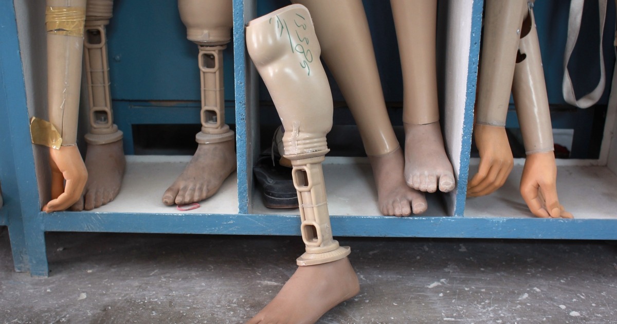 Prosthetic legs and arms await new amputees at a Red Cross orthopedic center in Kabul, Afghanistan on September 10, 2011.</p>