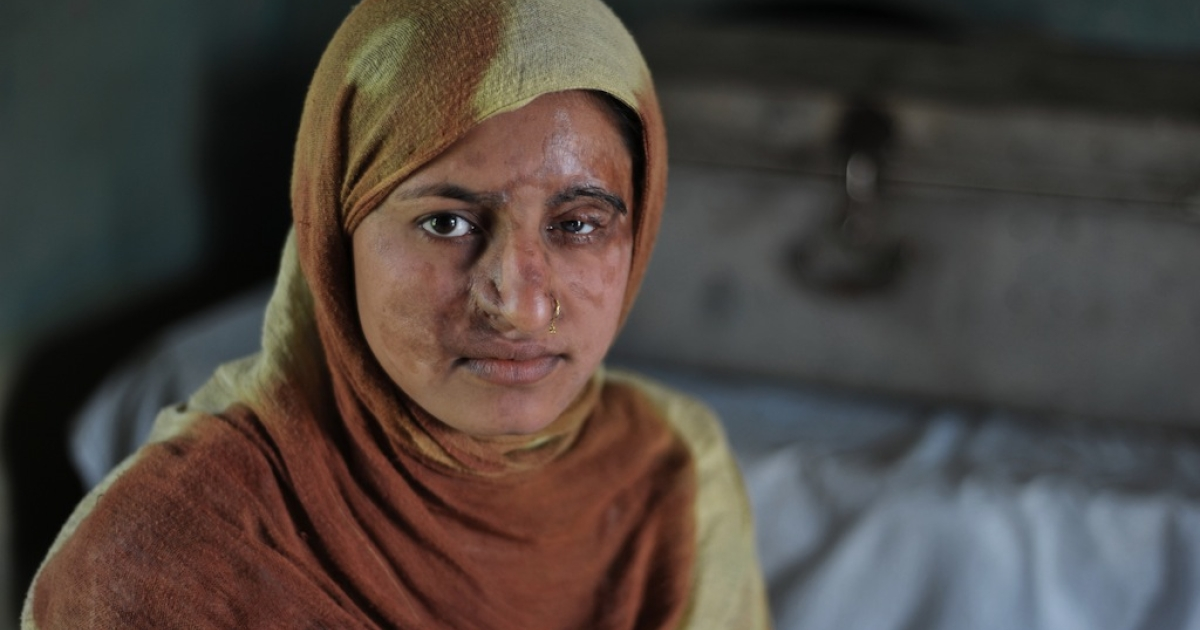 Acid attacks are among the worst forms of domestic violence in Pakistan and mostly directed at women, who are too often classified as second-class citizens. Victims are disfigured for life and ostracised by society.</p>