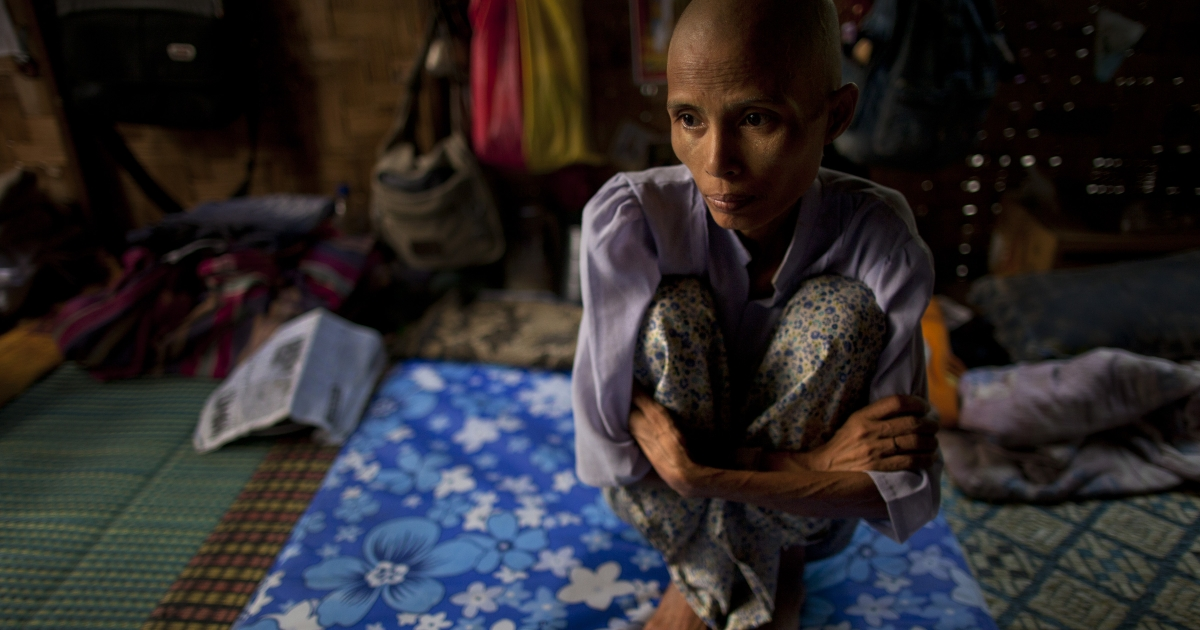 Ma Gyim , 41, a victim of HIV/AIDS sits on her bed after shaving her head at the HIV-AIDS Care and Prevention center April 5, 2012 in Yangon, Myanmar.</p>