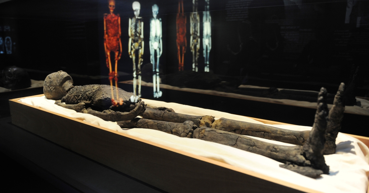 A false toe found on an Egyptian mummy likely world's first prosthetic ever discovered.</p>