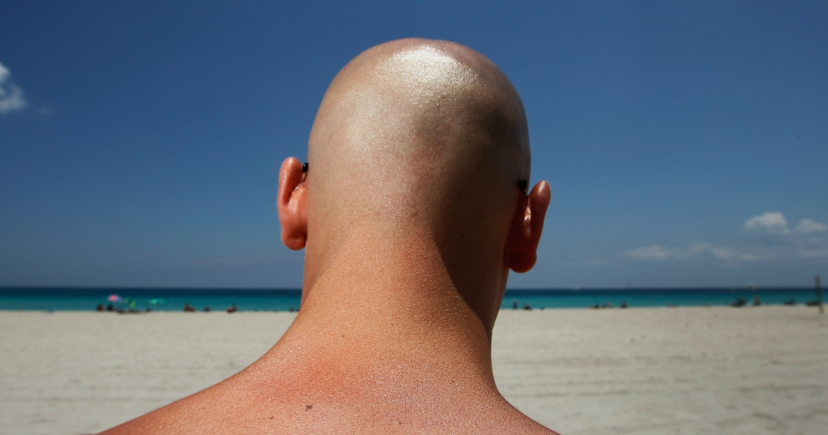 A new study shows how climate change and a depleting ozone are leading to skin cancer.</p>