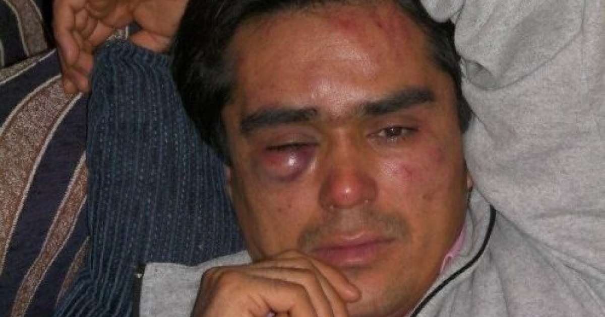 Safar Haidari, a 29-year-old asylum seeker from Afghanistan and vice-president of the Nour Afghan cultural association, who was attacked by a group of 10–15 men on December 23, 2011 in Athens, Greece.</p>