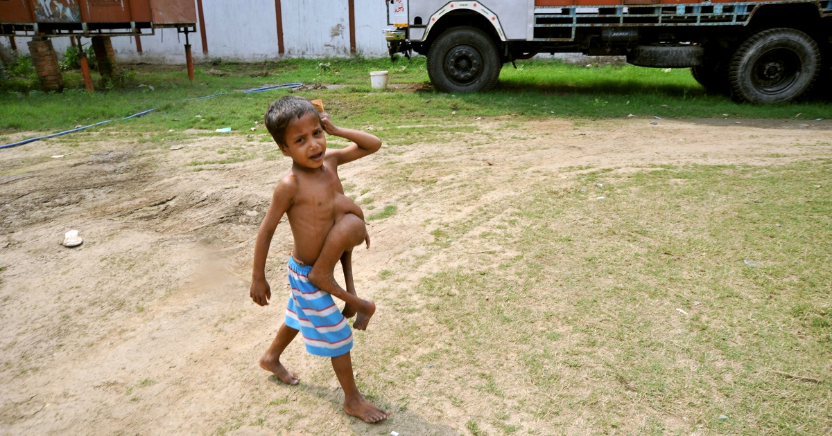 Indian boy Deepak Kumar, 7, cries as he walks with a parasitic twin growing from his torso in Belhari village, about 125 kms from Patna in Bihar state, Feb. 18, 2010.</p>