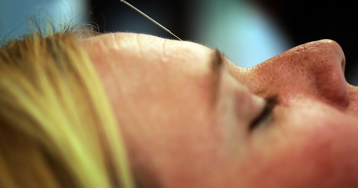 A new study has shown that acupuncture does work for pain relief.</p>