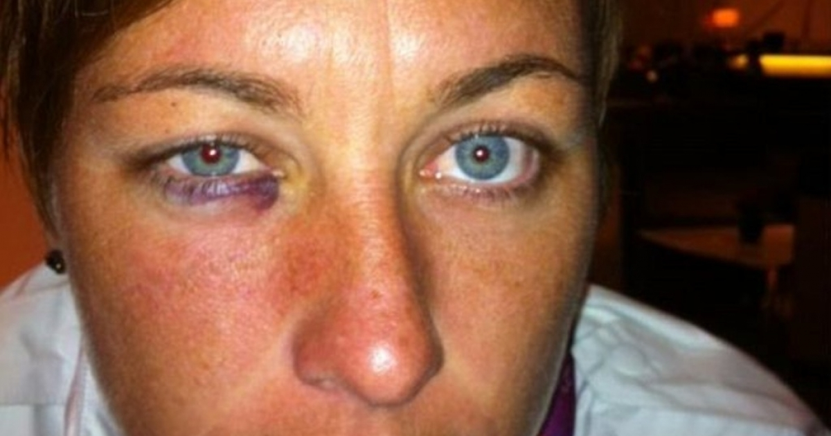 Abby Wambach shows off her black eye after being punched in the face by Lady Andrade during an Olympic soccer match.</p>