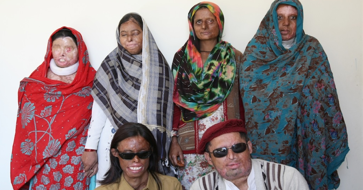 A group of Pakistani acid attack survivors pose for a photograph at the Acid Survivors Foundation (ASF) in Islamabad on January 5, 2010.</p>