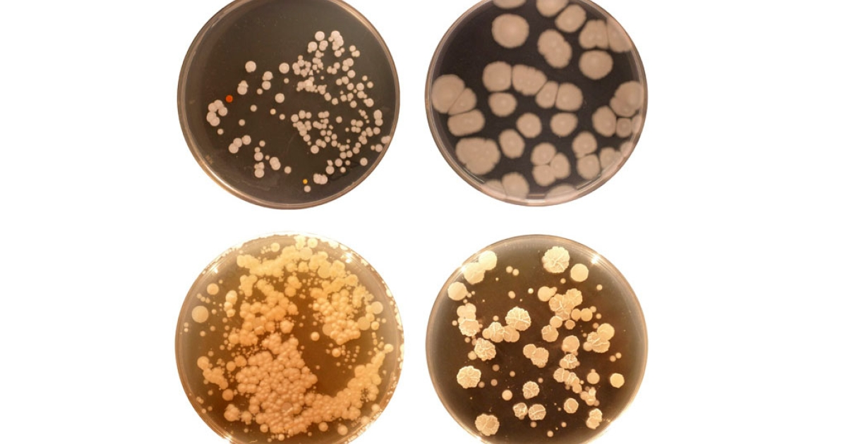 Samples of the many types of bacteria that live in our belly buttons.</p>