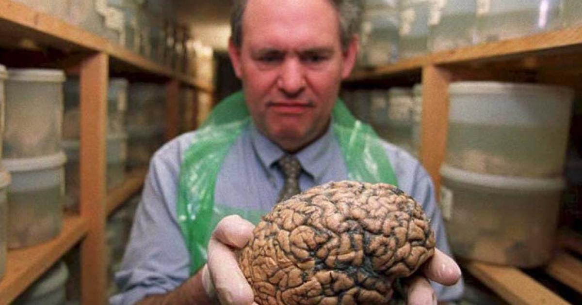 Dr. Clive Bruton, a neuropathologist at Runwell Psychiatric Hospital in Essex, England, holds one of 8,000 brains stored in their 'brain bank.'</p>