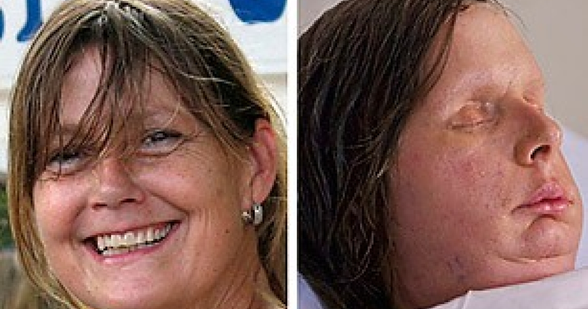Charla Nash, before and after. The undated photo on the right shows Nash after having received a full face transplant in May 2011 (Photo: Brigham and Women's Hospital / Reuters)</p>