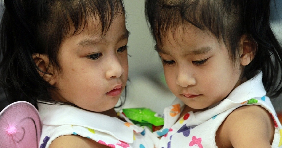 Another set of conjoined twins Angelica, (right), and Angelina Sabuco, who were separated successfully this year in Palo Alto, California.</p>
