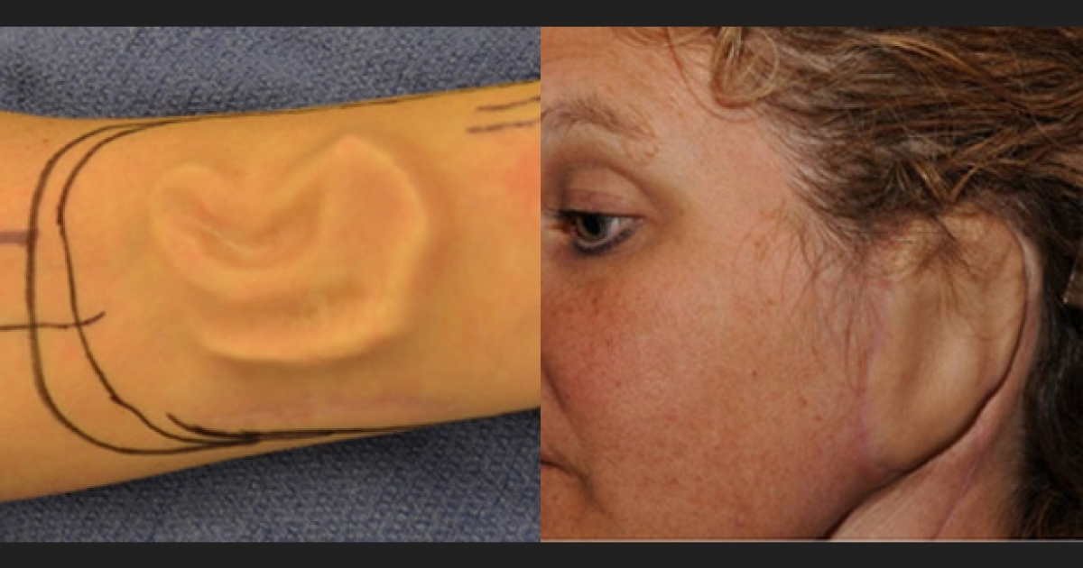 A woman who lost her ear grew a second one on her arm with help of Johns Hopkins doctors.</p>