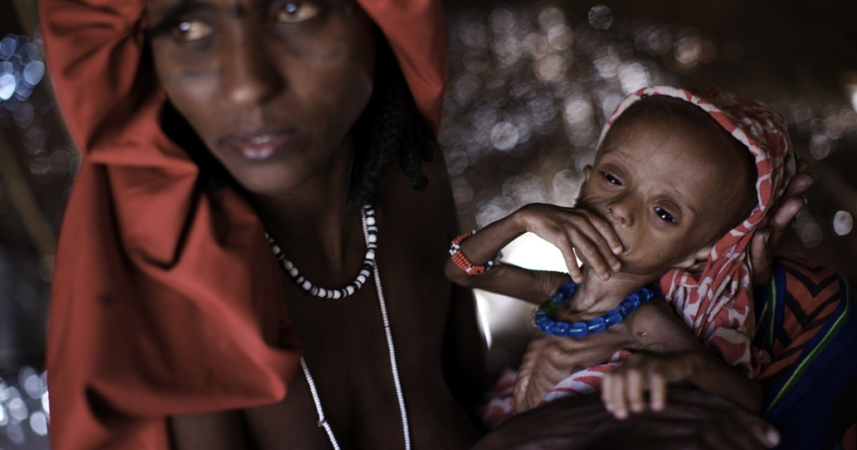 Momina Mohammed, 34, sits with her 8-month-old son, Ali Mohammed, who is suffering from severely acute malnutrition in a refugee camp in Suola, near the Eritrean border, Afar region, Ethiopia on Dec. 12, 2008.</p>