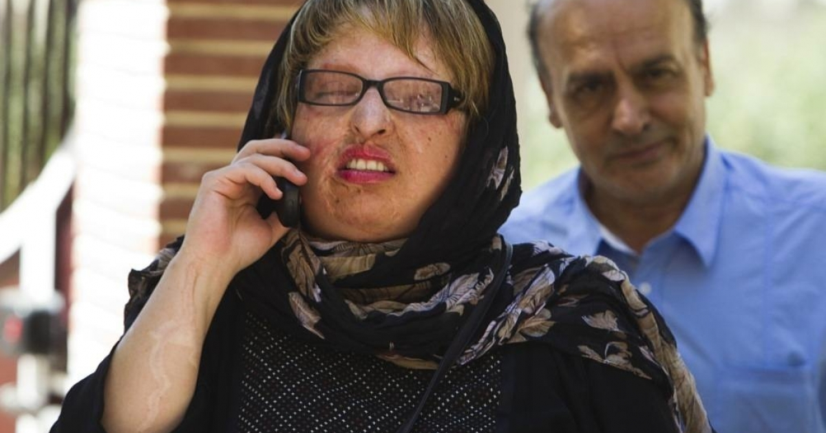 Ameneh Bahrami, who was blinded in both eyes after having acid hurled in her face by a university classmate when she repeatedly spurned his offer of marriage, arrives at her home with her father in Tehran, on July 31, 2011.</p>