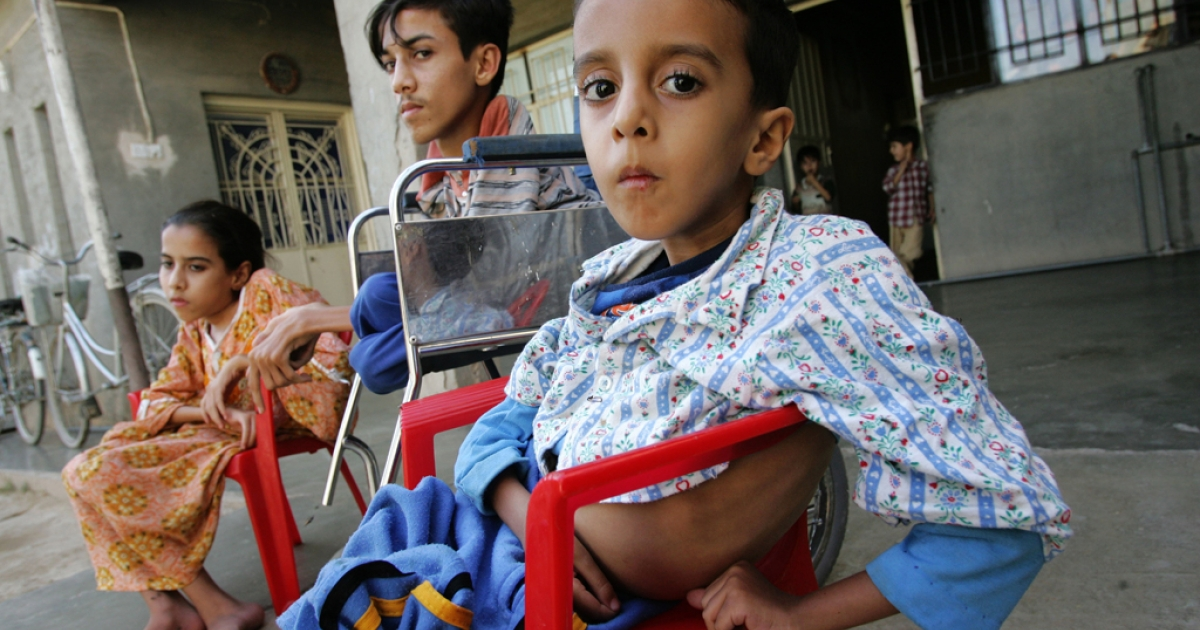 Yousif Hamed, age 4 years old, his brother Anas Hamed and his sister Inas who suffer from birth defects are pictured in the city of Fallujah west of Baghdad, Iraq. A new study published in October, 2012 says the weapons used by the US and NATO in Iraq led to a rise in birth defects in children conceived in the aftermath of the Iraq war.</p>