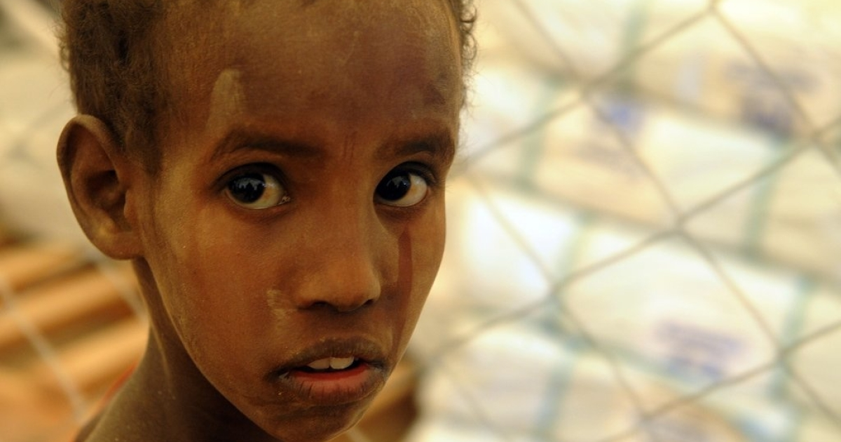 This young Somali refugee has just arrived at Dadaab refugee camp on July 10, 2011 in northern Kenya, where he waits for registration into the safe haven. He joins thousands of other refugees seeking water and aid at Dadaab's already overcrowded facilities.</p>