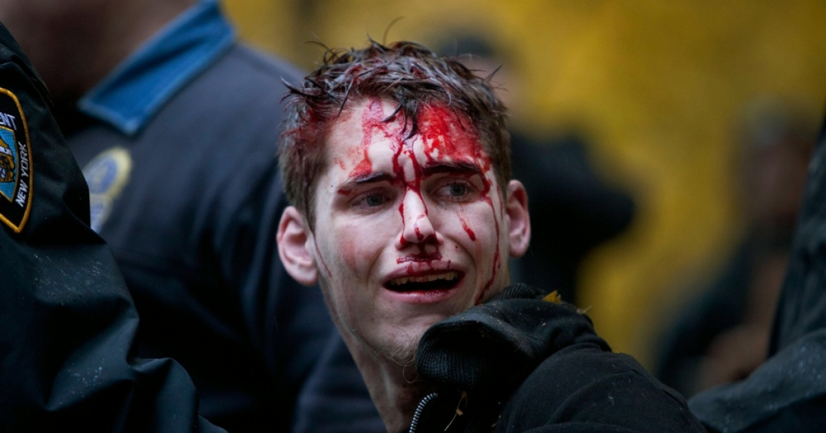 A man who identified himself as Brendan Watts is seen with blood on his face while surrounded by three police officers in Zuccotti Park on November 17, 2011, in New York City. A fight broke out between protesters affiliated with Occupy Wall Street and police, in which Watts was injured.</p>
