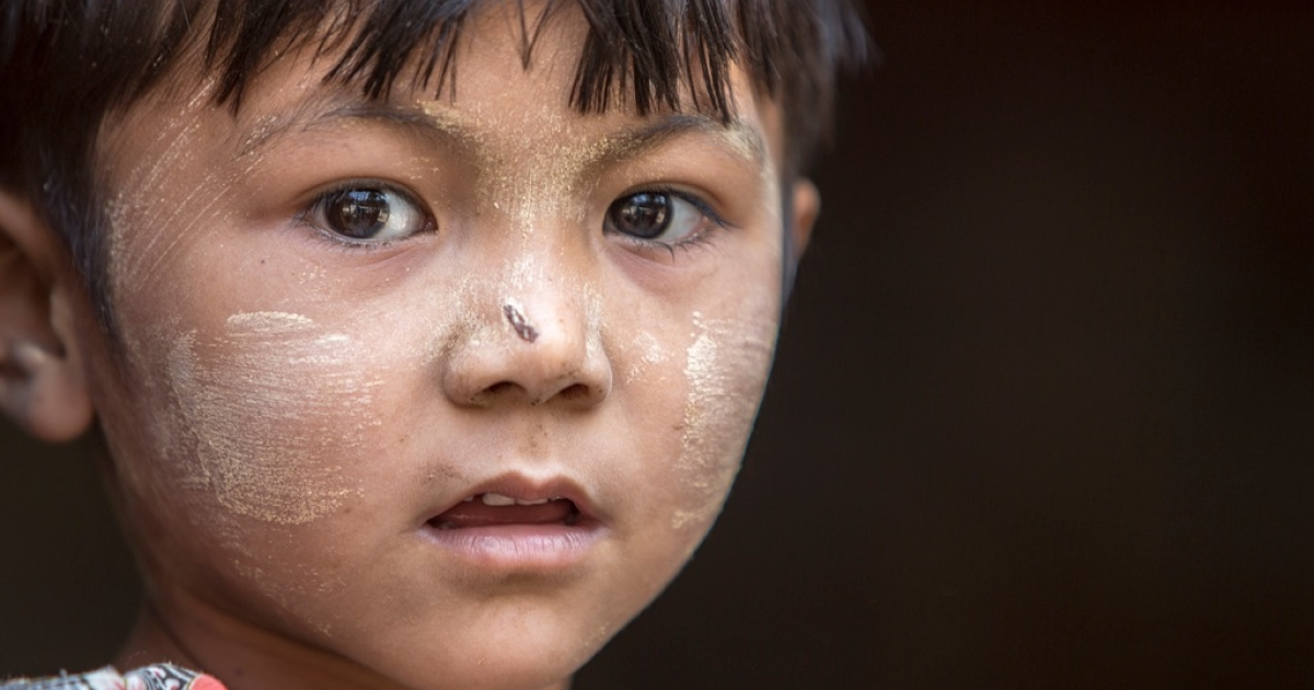 A child's face covered with thanaka in Sagaing Division, Myanmar. Made from tree bark, the yellowish makeup is widely used by women, and less frequently by men, of all ages in Myanmar.</p>