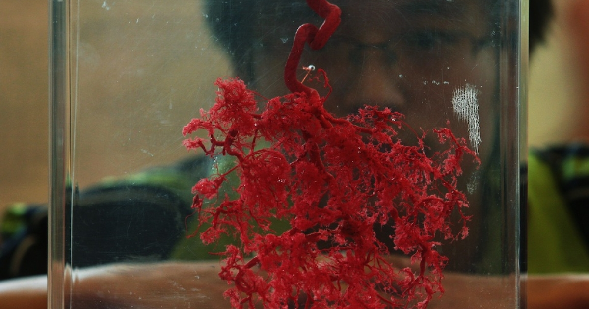 A visitor views a human specimen of placenta blood vessels during the 'Human Body's Wonder Scientific Travelling Exhibition.' A new study has found abnormal folds in the placenta may be a predictor of autism.</p>