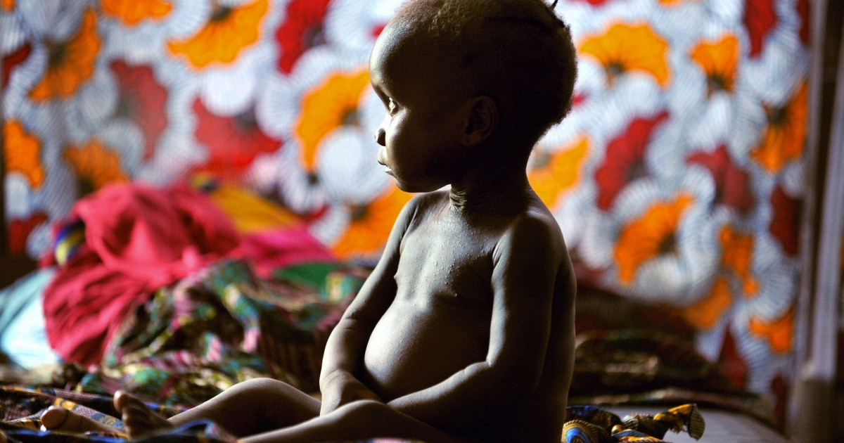A sick child awaits treatment on his bed at the Phebe hospital near Gbarnga on December 4, 2008.</p>