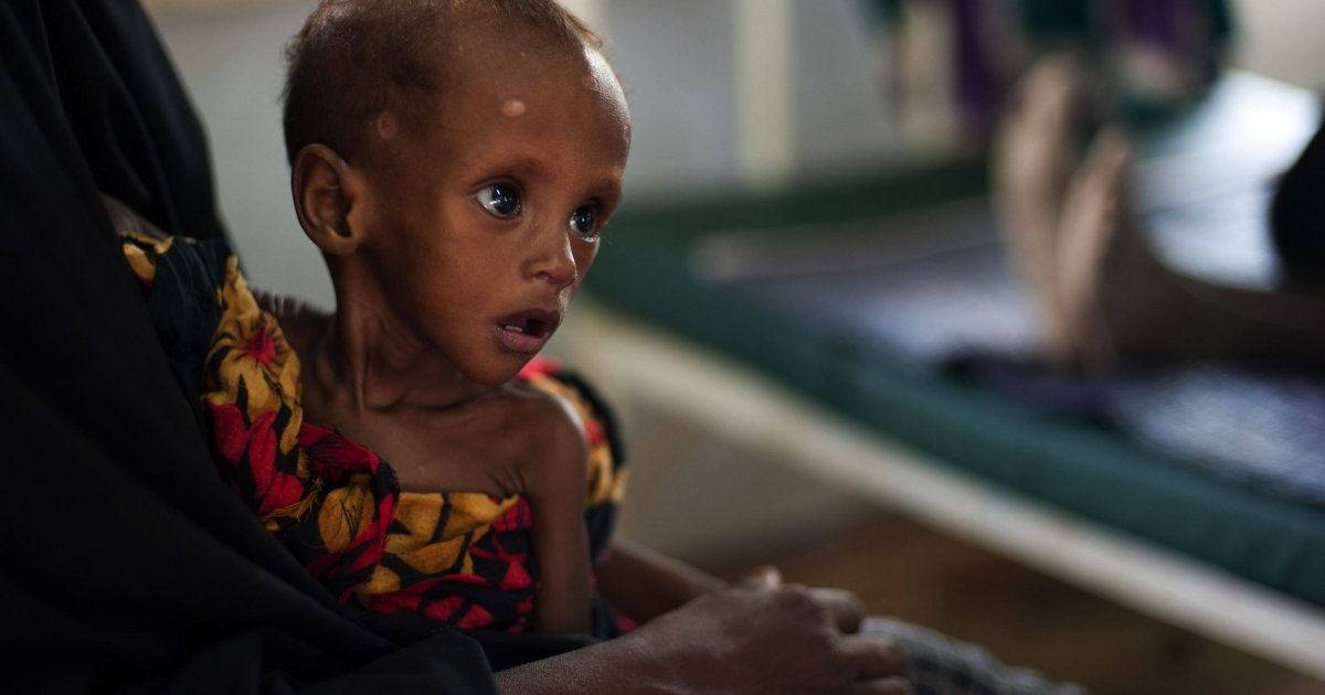 A Somali child suffering from severe acute malnutrition sits in a ward of the Medecins Sans Frontieres NGO in Dadaab in Kenya on July 22, 2011.</p>