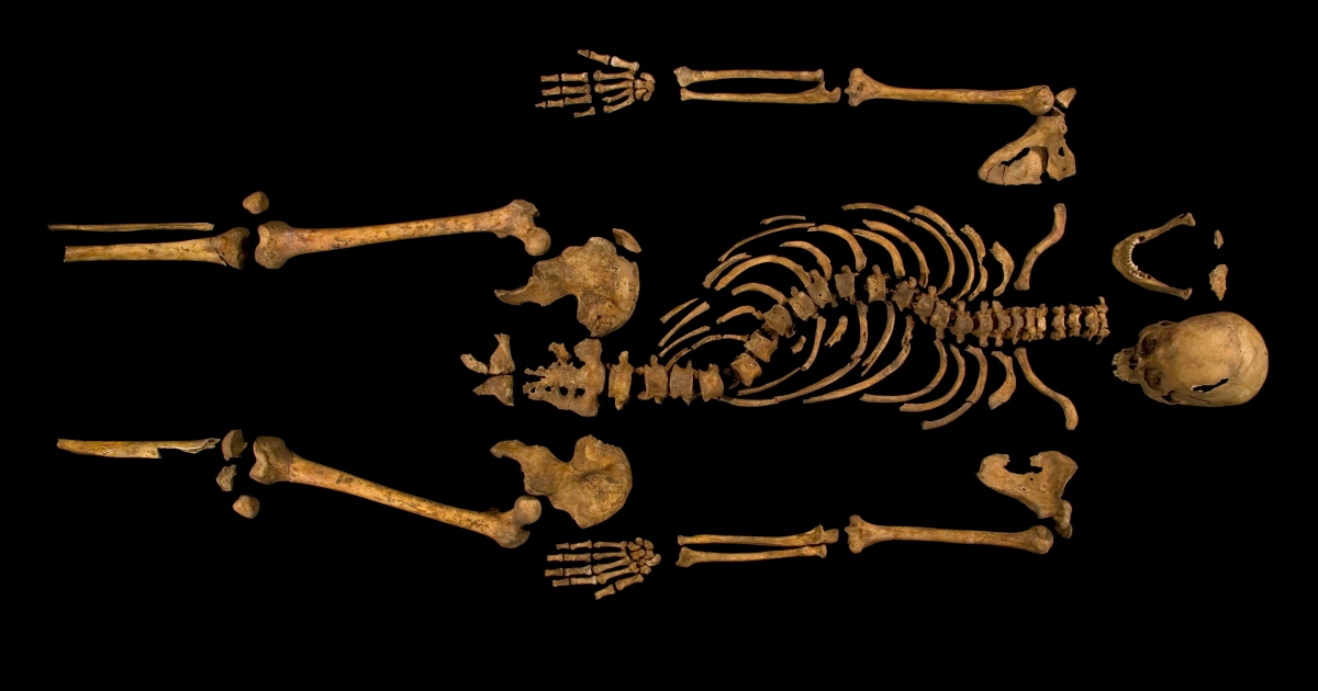 The skeleton identified as belonging to King Richard III, showing the deformity of his spine.</p>