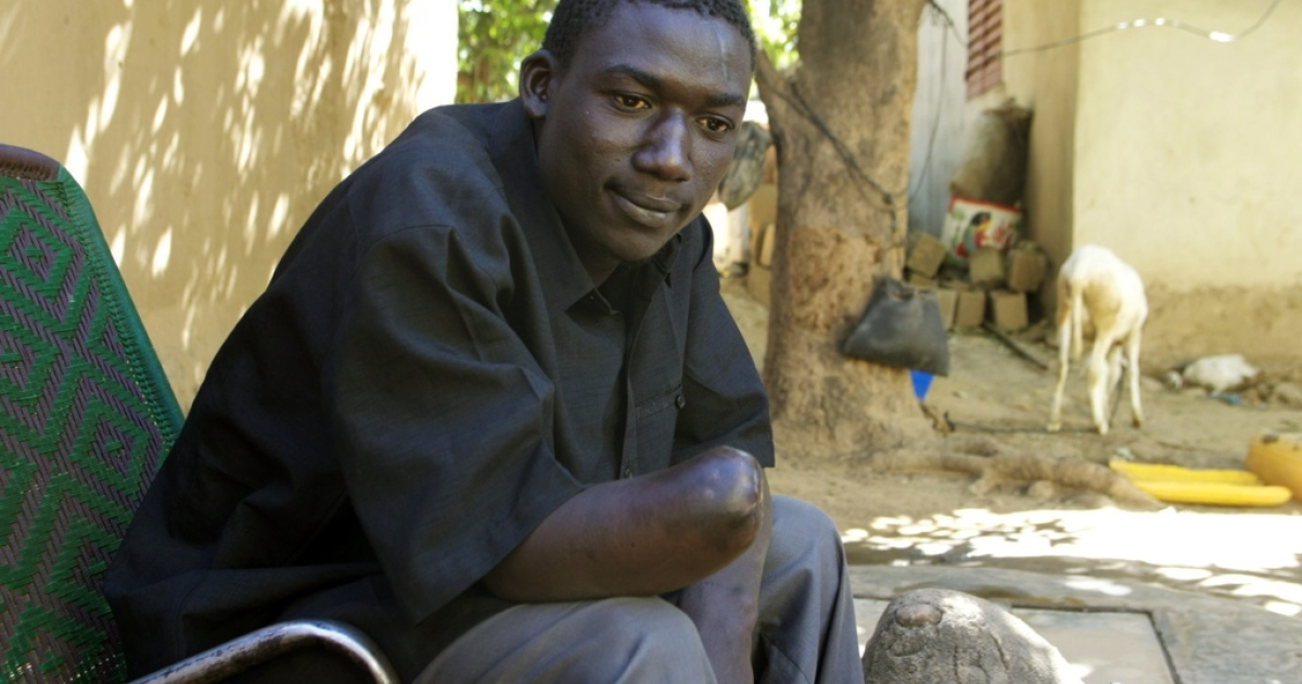 Malian truck driver Suleiman Traore's hand was amputated by militants.</p>