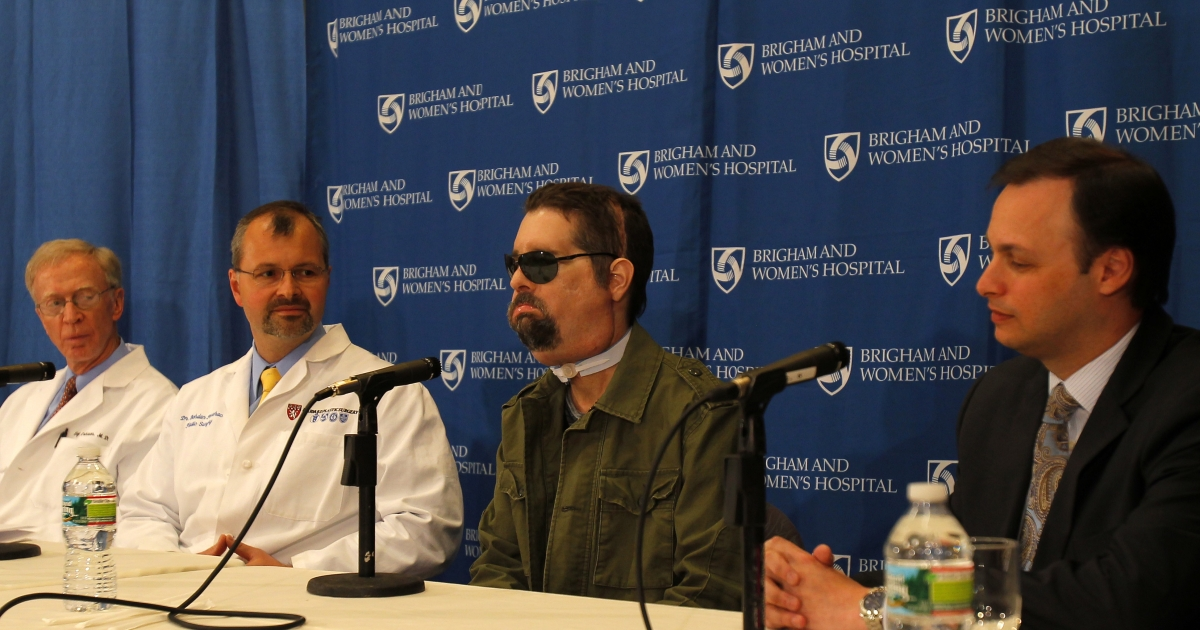 Full-face transplant recipient Dallas Wiens attends a press conference on May 9, 2011, at Brigham and Women's Hospital in Boston with Dr. Bohdan Pomahac (L), Dr. Jeffery E. Janis (R), Chief of Plastic Surgery, Parkland Health and Hospital System, Dallas, Texas, and Dr. Elof Eriksson, chief of Plastic Surgery at Brigham and Women's Hospital.</p>