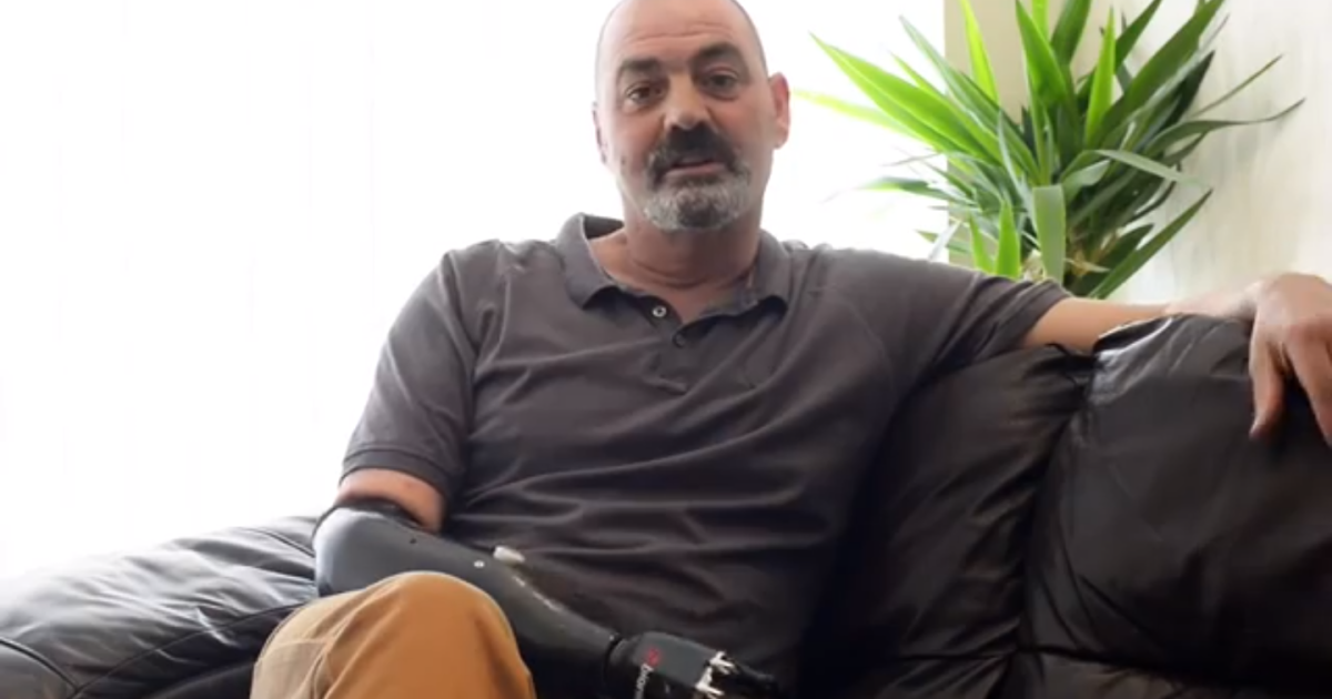 About six years ago, Nigel Ackland got into an accident while working as a metal smelter. He eventually decided to have his forearm amputated, but now — thanks to a prosthetic hand called Bebionic3 — Ackland can finally tie his own shoes again.</p>