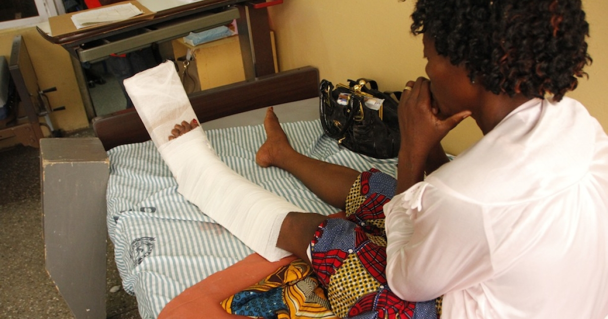 Gerturde Sumbamala looks at her left leg on a bed in a hospital in Accra after it was broken in a crush in an evangelist church on May 19, 2013. The offer of free anointing water at a popular church caused a stampede that killed four and wounded 30.</p>