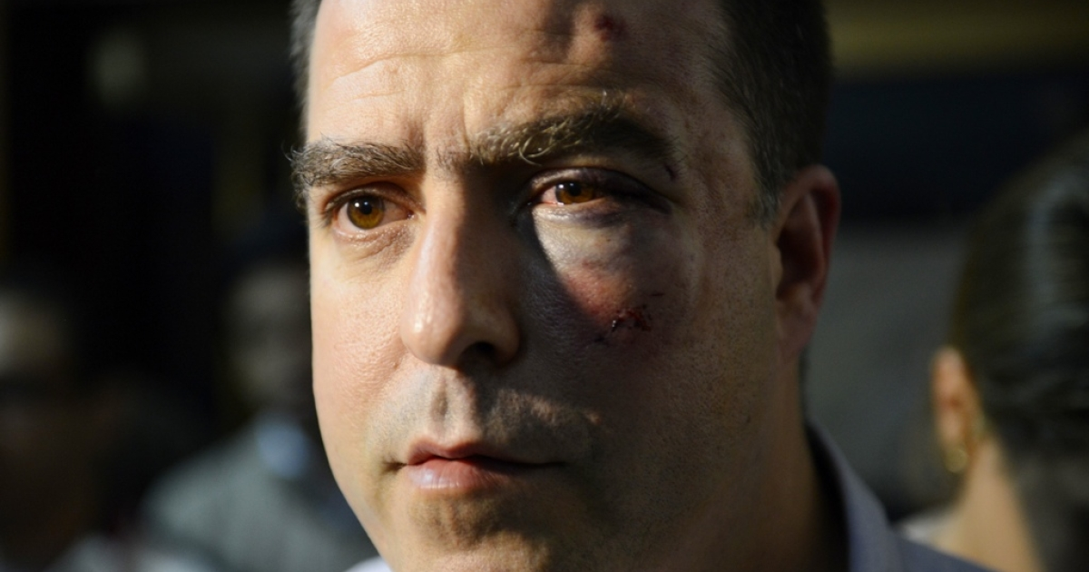 Opposition lawmaker Julio Borges after a fight inside the Venezuelan parliament.</p>