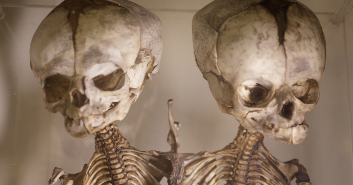These skeletons of cojoined twins are among the museum's 5,000 specimens.</p>