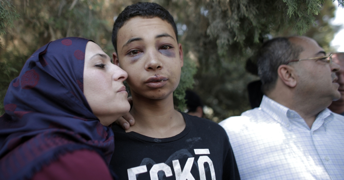 Tariq Abu Khder, a Palestinian-US teenager who was allegedly beaten during police custody, is hugged by his mother following a hearing at Jerusalem Magistrates Court on July 6, 2014.</p>