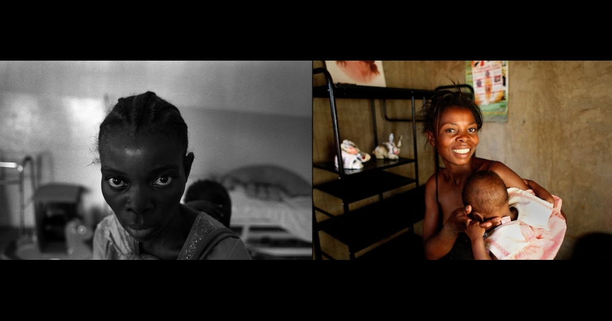 AIDS patient Silvia Ng'andwe at a health center in Lusaka, Zambia, before (left) and after (right) a 40-day treatment of antiretroviral drugs, ARVs.</p>