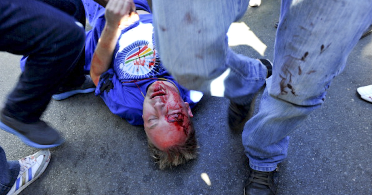 A member of the opposition Democratic Alliance (DA) party is injured by a stone thrown on May 15, 2012 by members of the Congress of South African Trade Unions (Cosatu), the country's largest trade body, in the center of Johannesburg. DA supporters marched on the head office of the Cosatu to demand government wage subsidies for young people, which the party says will create over 400,000 jobs. Cosatu opposes the subsidy.  Clashes broke out as Cosatu supporters met them in the streets. Cosatu is part of an alliance with the ruling African National Congress.</p>