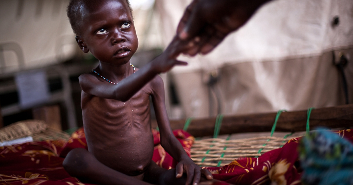 A child from Sudan's Nuba Mountains shows signs of severe malnutrition in a feeding center at the Yida refugee camp in South Sudan.</p>