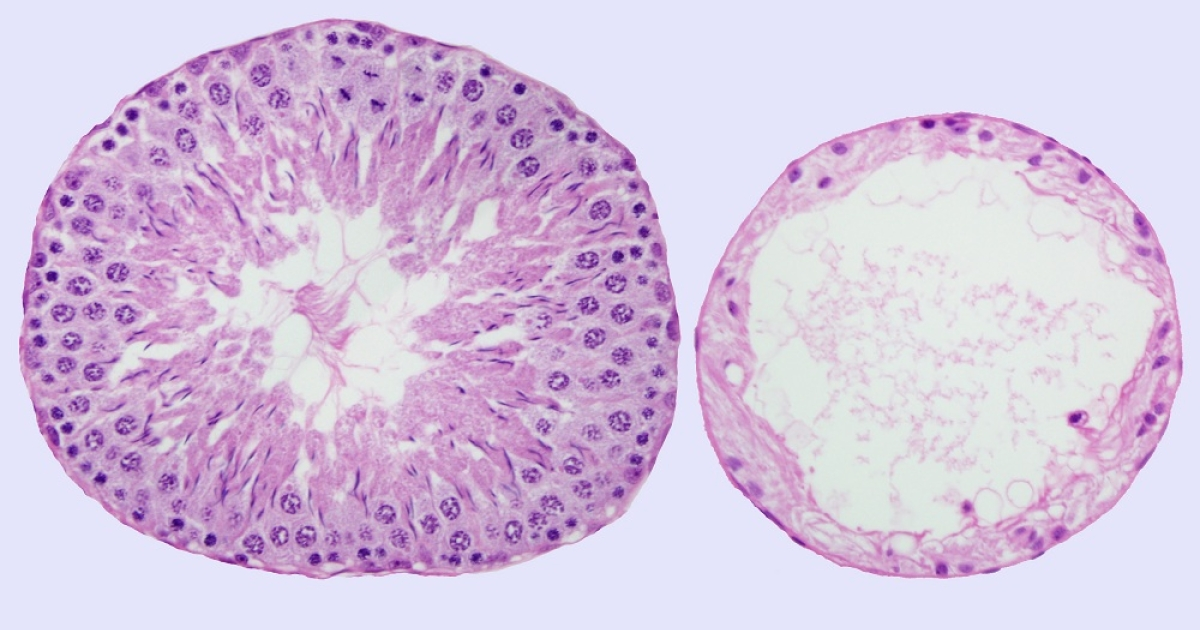 """The testis is composed of many tubes called """"seminiferous tubules."""" The seminiferous tubule on the left is from a testis that was not treated with ultrasound while the tubule on the right is from a testis that was treated with ultrasound.</p>"""