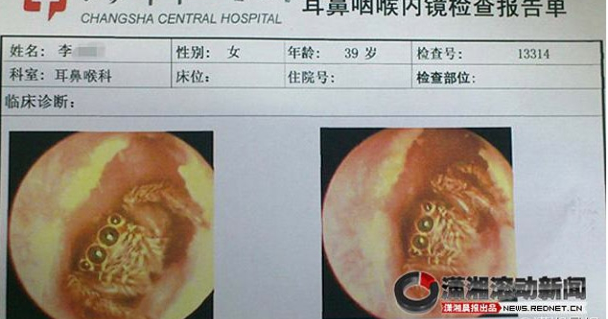 The horrifying spider that doctors found in the woman's ears. It looks surprised after being discovered.</p>