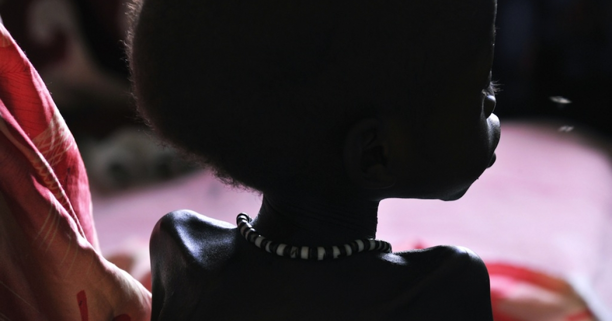 Two-year-old Dhoal's bones show as he sits in his mother's lap in a ward for children suffering from severe malnutririon at a local hospital in the southeast Sudanese town of Akobo on Apr. 10, 2010.</p>