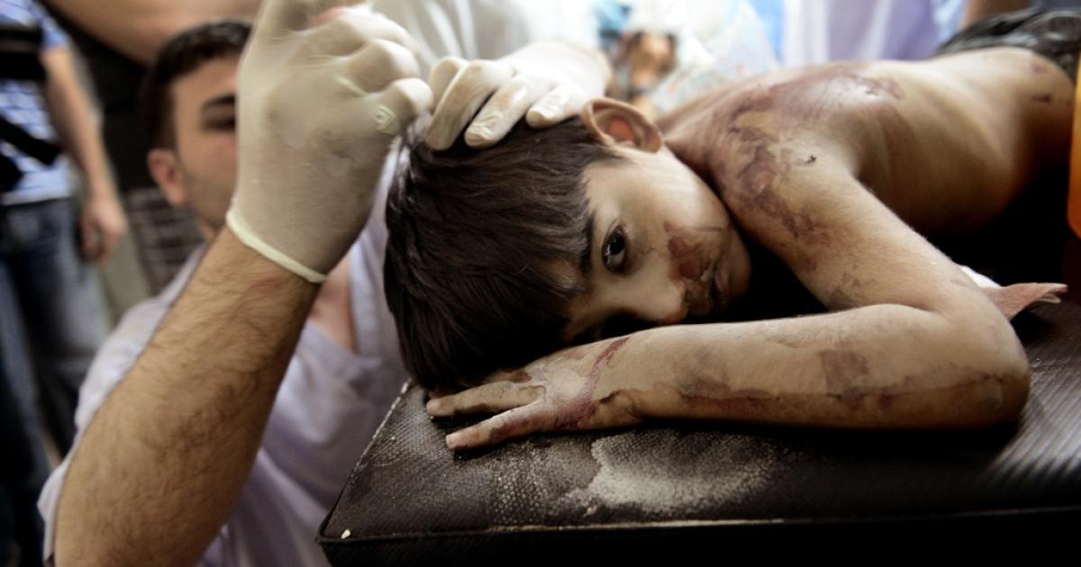 A Syrian boy receives treatment in Aleppo, Syria.</p>