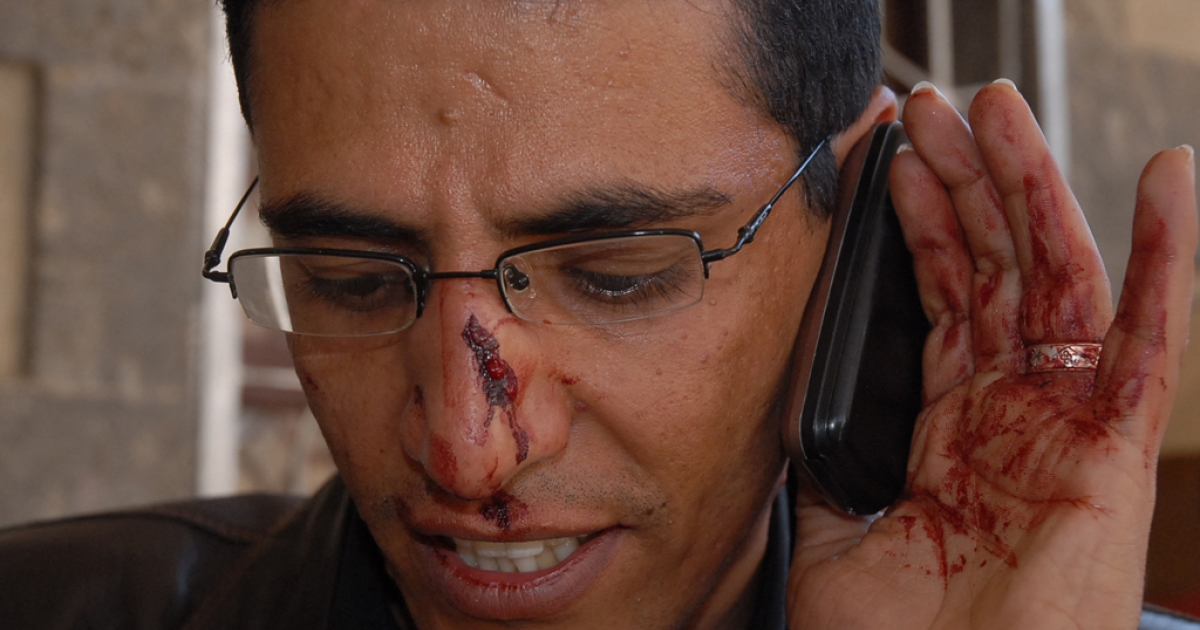 Yemeni BBC Arabic service reporter Abdullah Ghorab speaks on his mobile phone after sustaining wounds he said he sustained when attacked by supporters of Yemen's ruling party during demonstrations in central Sanaa.</p>