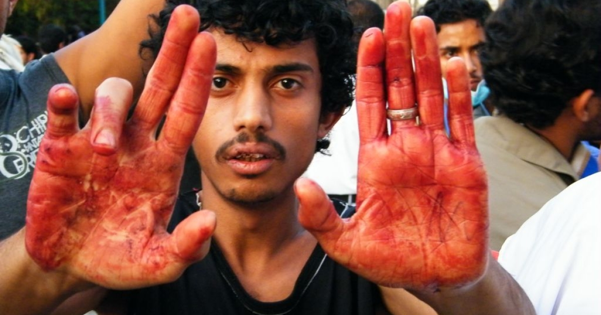 May 11, 2011: A protester holds up his blood covered hands after dozens of activists were shot by security forces when they attempted to march to the Prime Ministers residence on May 11. By the end of the night 13 were dead and hundreds left with gunshot wounds.</p>