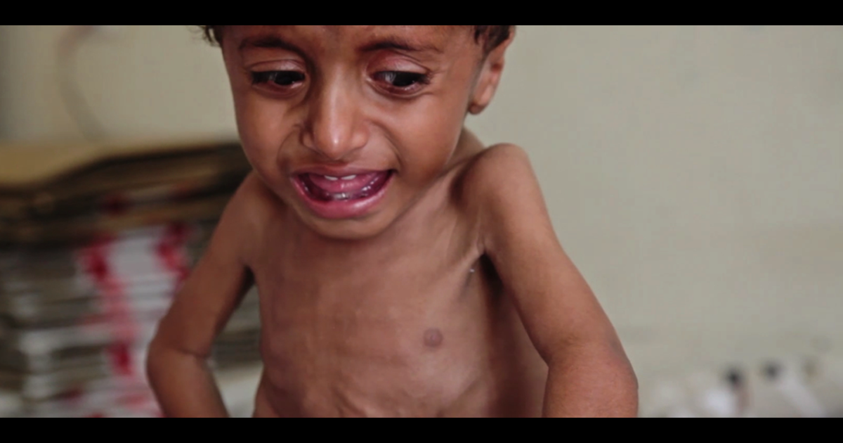 Two-and-a-half-year-old baby Anas weighs just 13 lbs. He is one of the 267,000 children with life-threatening levels of malnutrition in Yemen.</p>