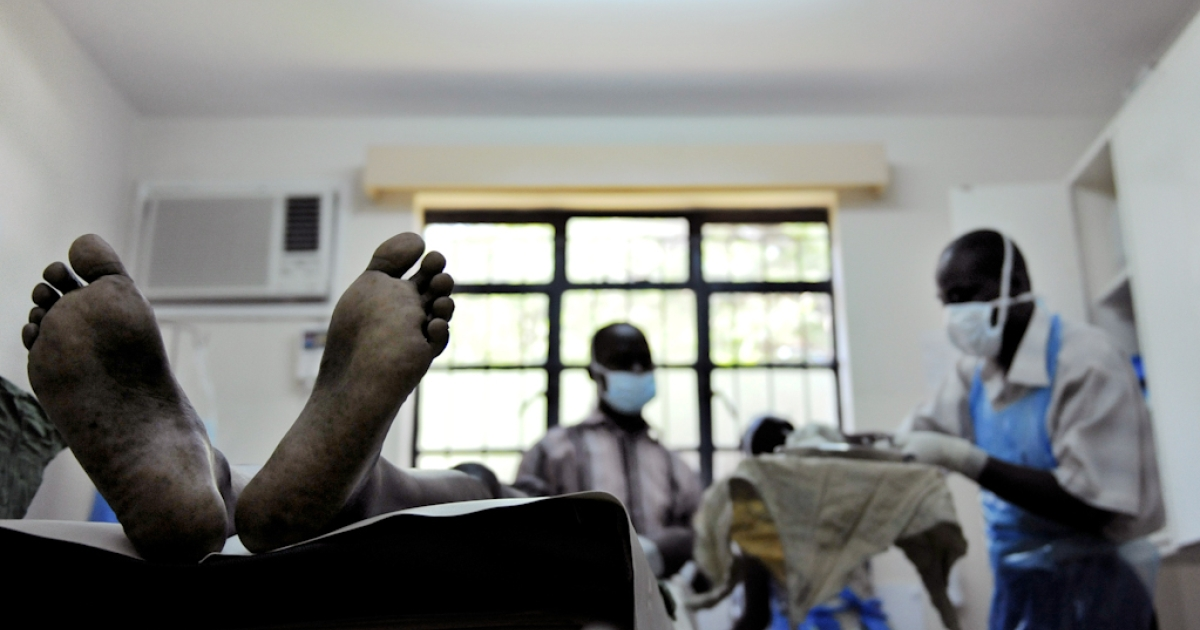 A man lies in a surgical theater waiting to undergo a circumcision procedure at a donor-funded clinic in Kenya's lake-side town of Kisumu. A group of male lawmakers in Zimbabwe have agreed to be circumcised June 22, 2012 as part of a HIV/AIDS prevention campaign. The MPs will also undergo HIV testing and counseling.</p>