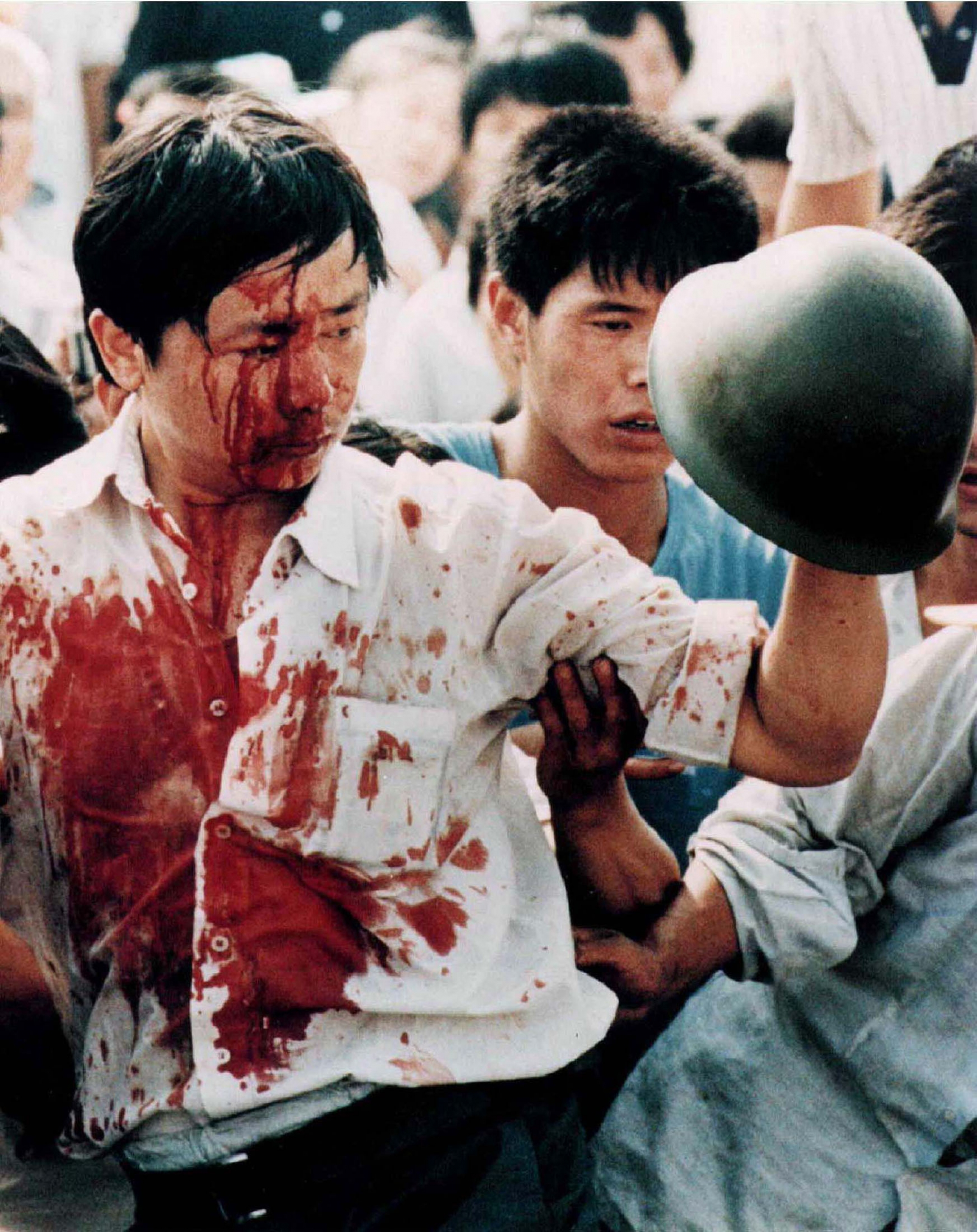 A man is covered in blood while holding up a military helmet.