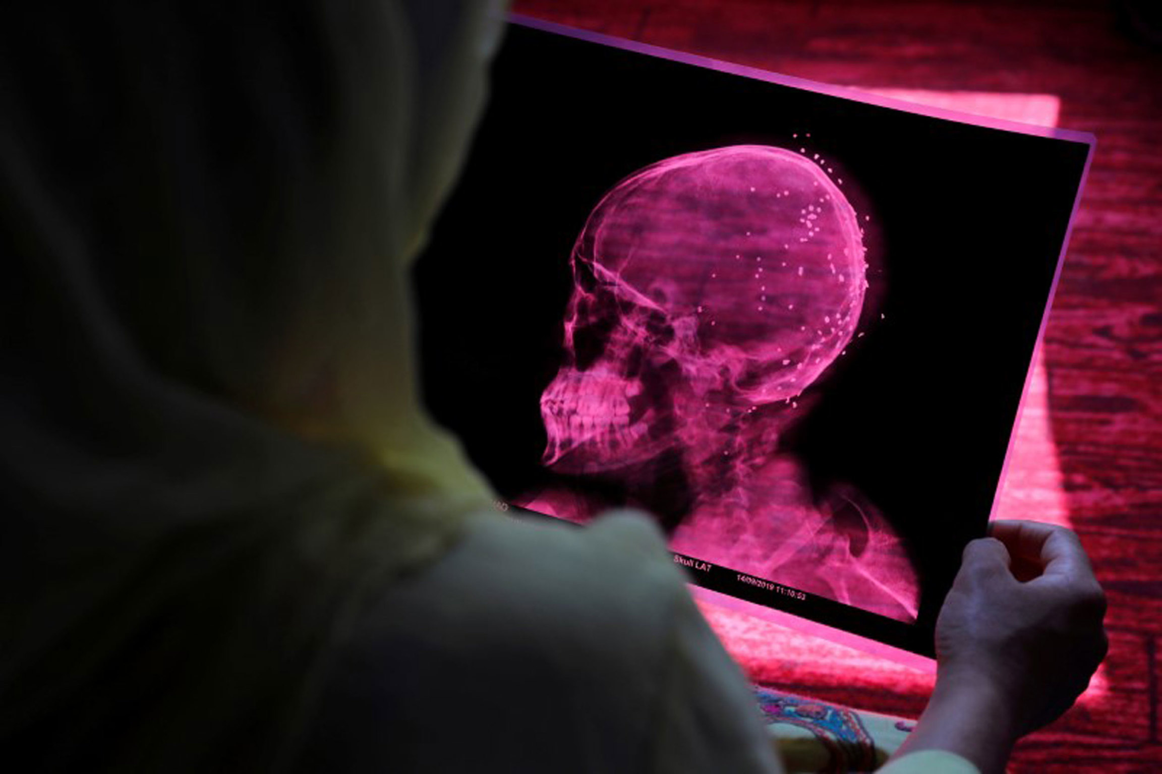 A woman is shown from over her shoulder holding a pink colored X-ray