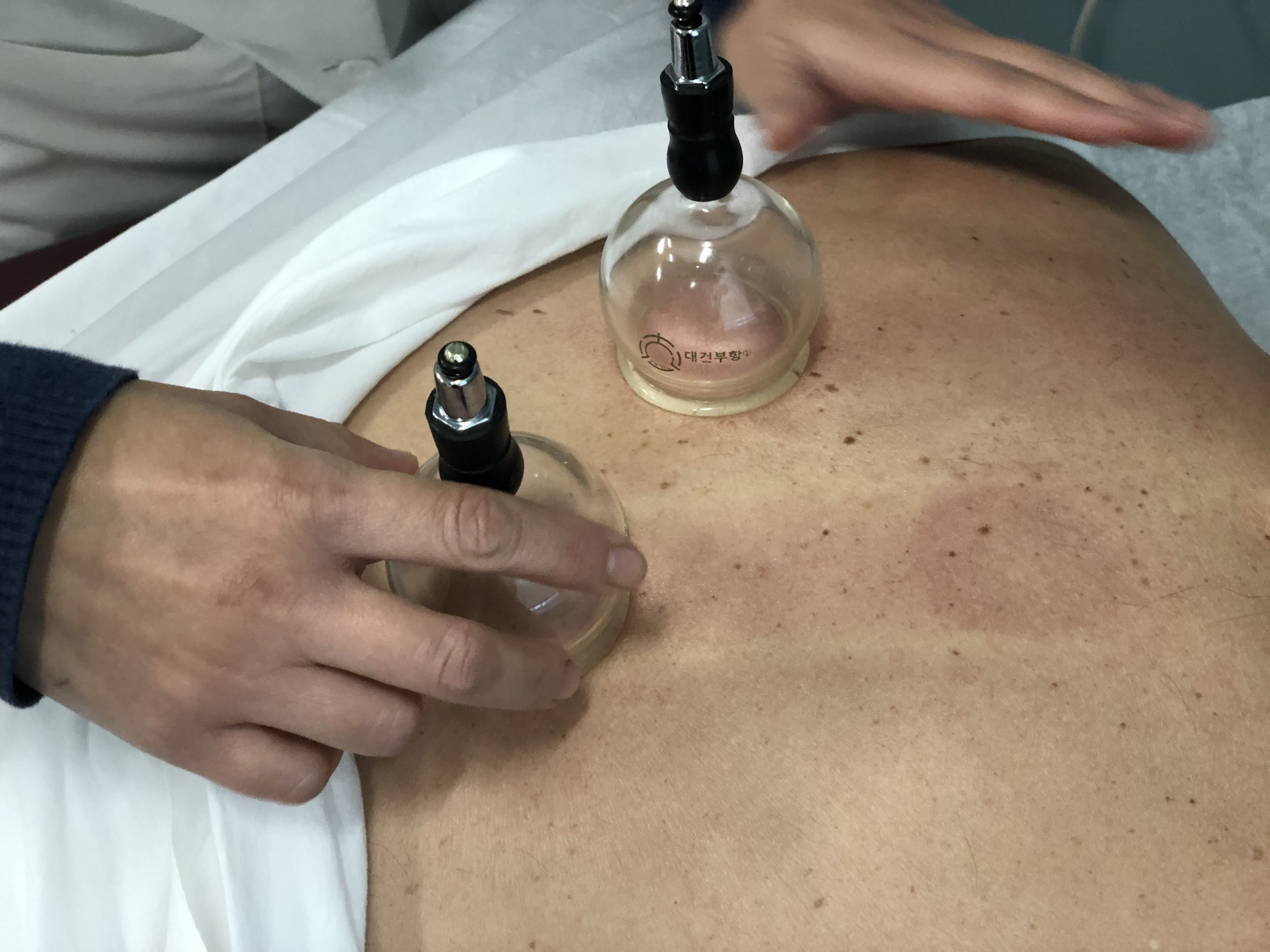 Quan Zhou, a traditional Chinese medicine practitioner, performs a cupping procedure on a patient's back at the New England School of Acupunctu