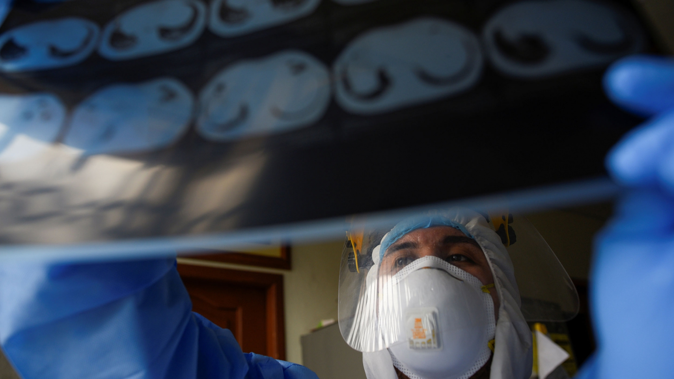 A doctor is shown wearing protective medical clothing and a face shield while holding up a X-ray photo of a patient's lungs.